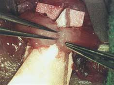 Vasectomy reversal - lumen